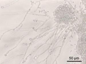 Candida albicans virulente: biofilm e ife (prolungamenti) capaci di sottrarsi alle difese immunitarie.